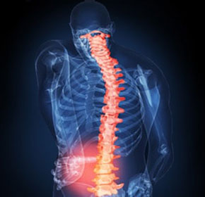 What is a Work Related Muscular Skeletal Disorder (WMSD)?