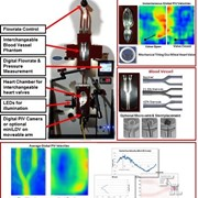 Hemodynamics Visualization & Analysis System | Hemoflow | CAD, CFD