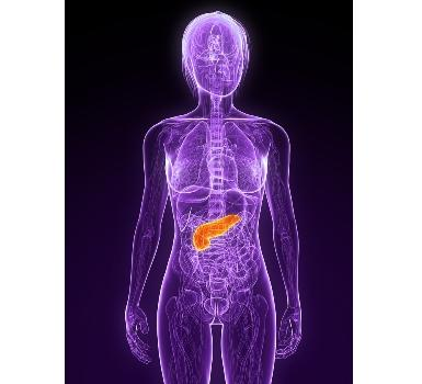Pancreatic cancer is the fourth-leading cause of cancer death in western societies.