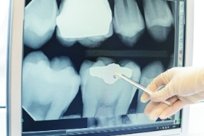 Patients and practitioners could benefit from a faster and more user-friendly dental x-ray solution.