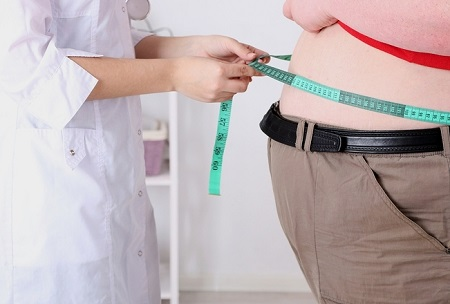 A study has identified poor access to bariatric services for populations most in need.