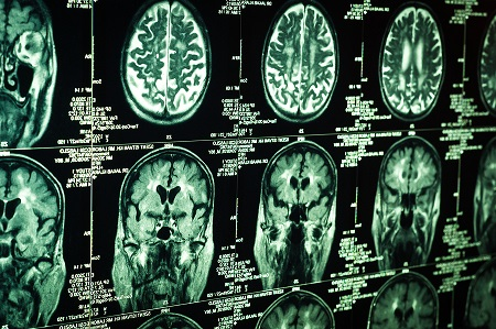 Advanced brain imaging is a critical component of a new treatment for stroke patients. (stock image)