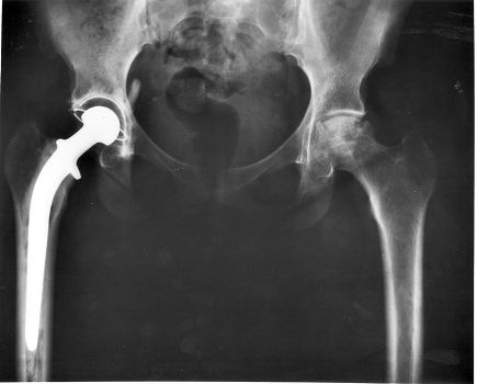 """Hip replacements have given hundreds of thousands of Australians back the pain-free mobility and quality of life which they would otherwise have lost."""