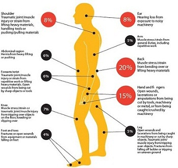 Injury Hot Spots
