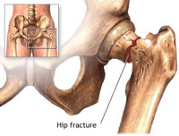 Hip Fractures can be devastating...
