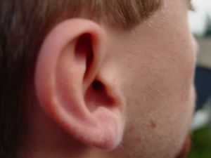 Sensorineural hearing loss occurs when hearing cells in the cochlea lose their function.