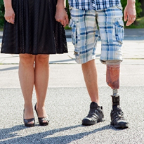 Life-changing prosthetic devices to 'remain unattainable' long term