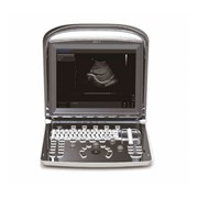 Ultrasound Machine | Eco 1