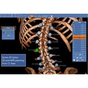 3D Imaging System | 3D Spine