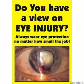 Safety Poster | Do You Have A View