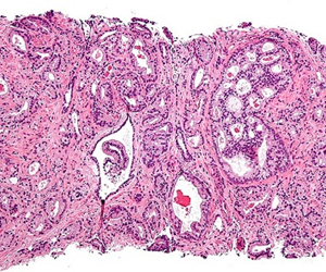 A micrograph showing prostatic acinar adenocarcinoma, the most common form of prostate cancer.