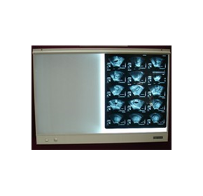 X-Ray Viewing Screens | Esco