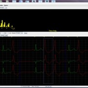 Holter Analysis Software | Holter LX - Enhanced Plus