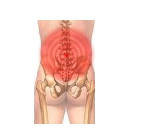 Low Back Pain Laser Therapy - Low Level
