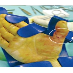 Lead Hands | Chirobloc | Orthopedic Surgery Support