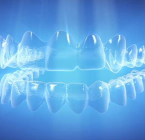 Next generation aligner material: improving control of tooth movement