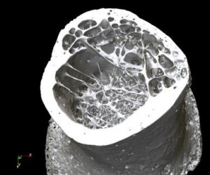 3D micro-CT rendering of a proximal human radius bone.