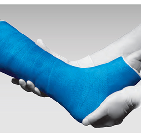 Synthetic Casting Bandage | PrimeForm™ Fibreglass