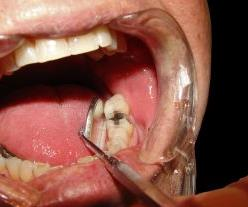 Patients with neuropathic pain often attend the dentist complaining of pain in a tooth.