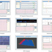 Holter Analysis Software | Cardioscan Elite ECG