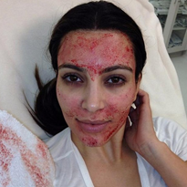 Kim Kardashian's $1,500 'vampire facial' is a Hollywood hit