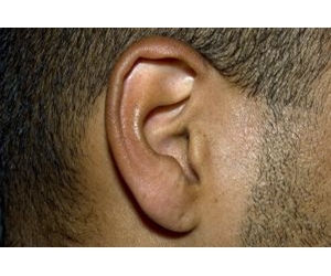 individuals who lack both copies of the good gene can lose their hearing from the age of 20.