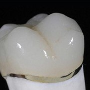 PFM Implants