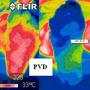 FLIR i7 and a podiatry application
