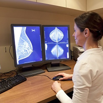 7 types of identified breast cancer 'may' give more accurate prognosis