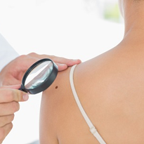 Laser imaging system 'could' revolutionise skin cancer diagnosis