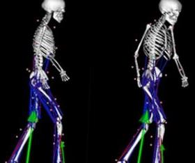 'Virtual' changes can identify if particular treatments will improve a patient's ability to move more freely. (Image: UQ)