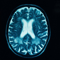 Timing 'key' for traumatic brain injury treatment