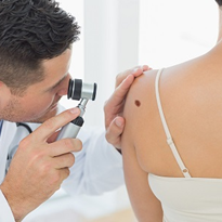 Pharmacy skin cancer checks slammed by dermatologists