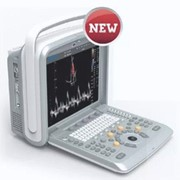 Digital Colour Doppler Vet Ultrasound Machine | Chison Q9