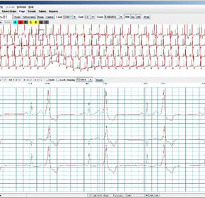 Holter LX Analysis Software keeps track of patient status 24/7