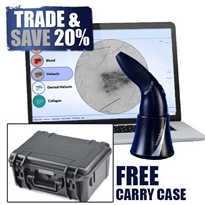 MoleMate Skin Imaging System with Free Hard Carry Case | MEDMMC