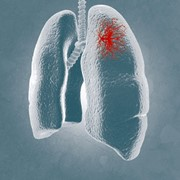 New Respiratory Pathogens PCR Kit | Fast-Track Diagnostics
