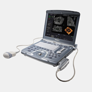 Portable Ultrasound | Voluson i