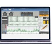 Electrocardiogram Analysis Medical Software