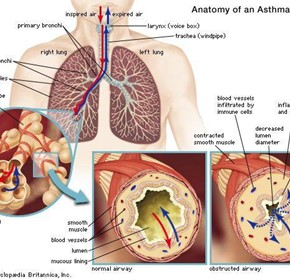 Mystery of How Eating Causes Asthma Attacks