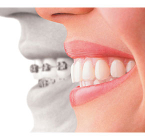 Invisalign reaches 2 million patients
