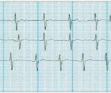ECG recorded by HCG-801
