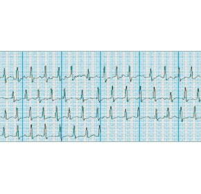 Case Study: Omron monitor detects paroxysmal atrial fibrillation