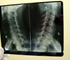 About 9000 Australians live with disabilities caused by spinal cord damage, with road accidents causing nearly half of such injuries in Australia.