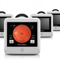 Diabetic retinopathy screening technology
