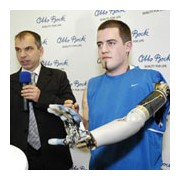 Arm prosthetics: It's about improved quality of life