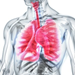 Potential new treatment for cystic fibrosis uncovered