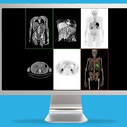 3D Imaging System-Volume Viewer