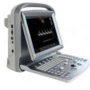 Ultrasound Machines | ECO 5