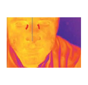 Infrared Cameras Help Prevent The Spread Of Infectious Diseases